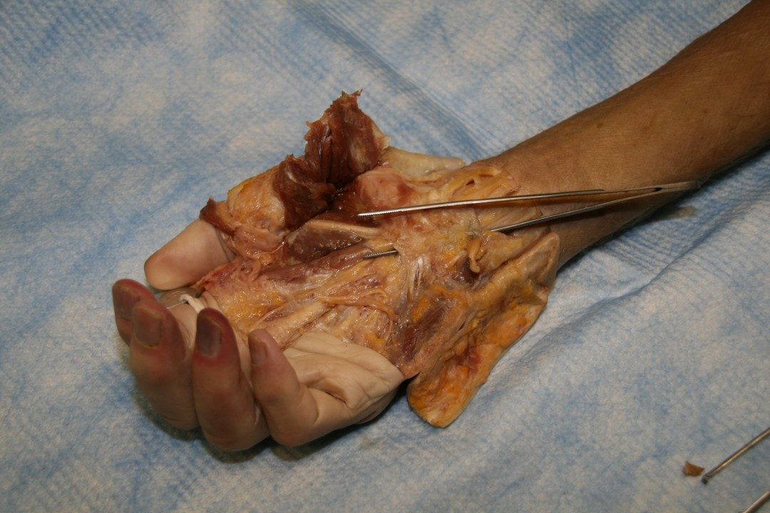 Cadaver Testing of the Carpal Tunnel